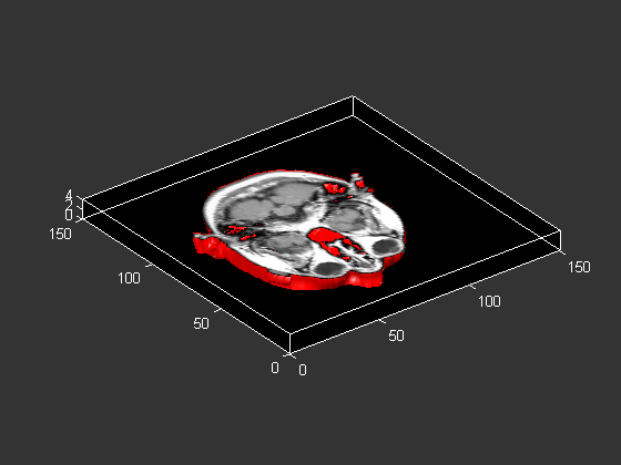 Volume Visualization
